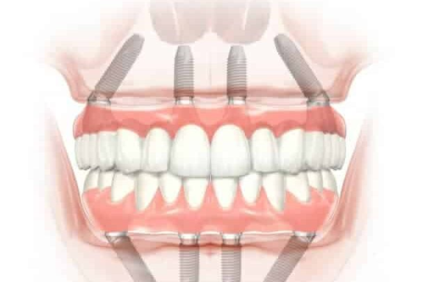 Ile kosztują implanty zębów (cała szczęka)?